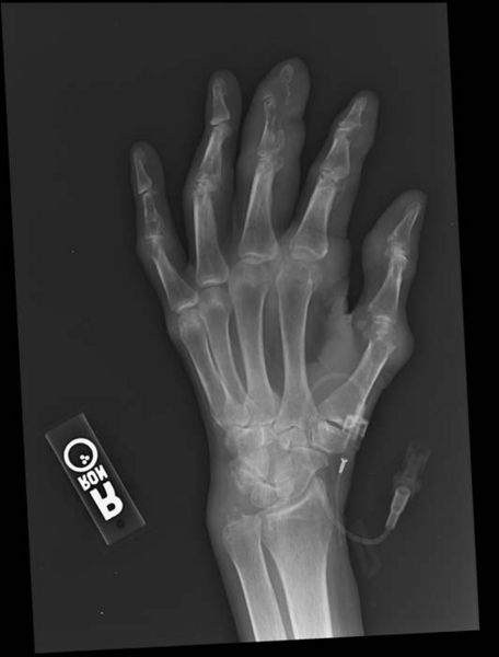 Ard Gout X Ray Wikidoc
