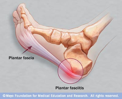 Nasty Foot Pain! Miami Women-Only Fitness Bootcamp