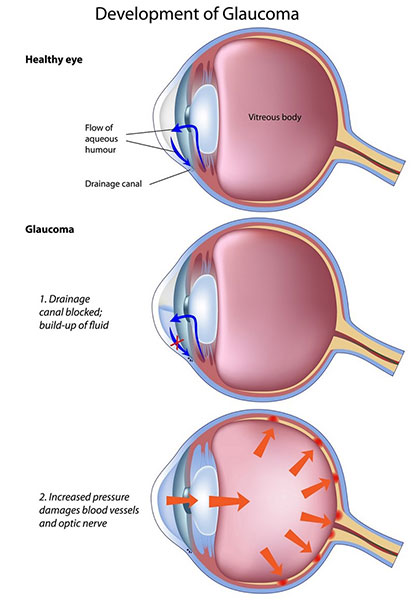 3 reasons why cornea is the new Glaucoma - Wound Care Advisor