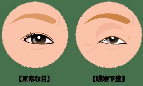 症状は片目だけの場合と、両目で発症する場合があります。眼瞼下垂