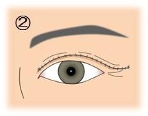 眼瞼下垂_まぶたの一部切除