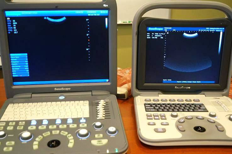 Sonoscape S2 color and Sonoscape A6 black and white portable ultrasound for sale