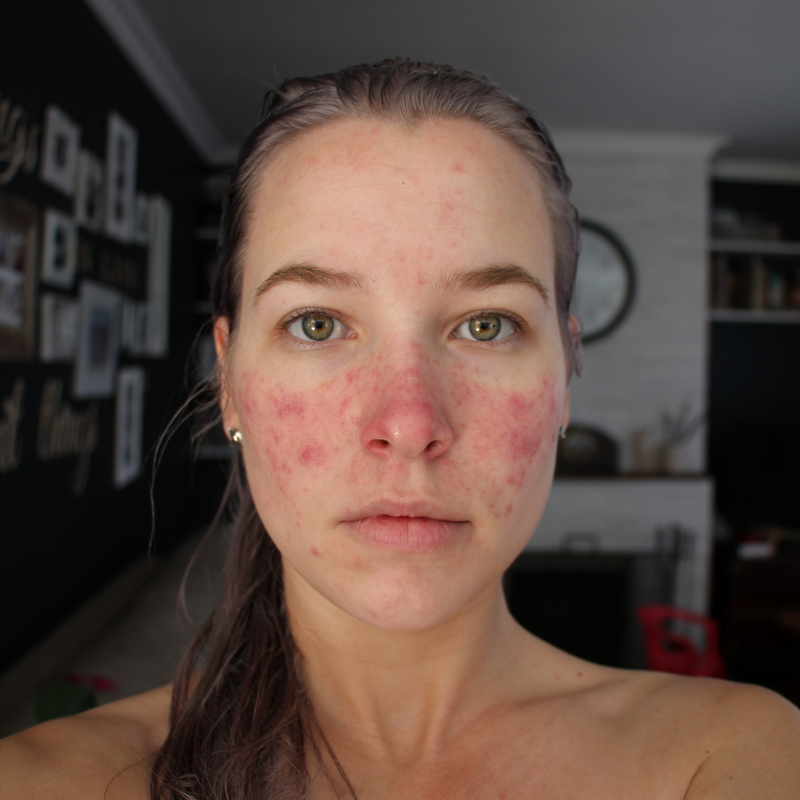 Skin Update - The Blood Test Results...