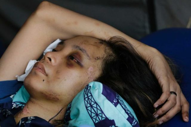 Indonesian woman Anisa Cornelia is badly cut and bruised after the tsunami on the island of Sulawesi.