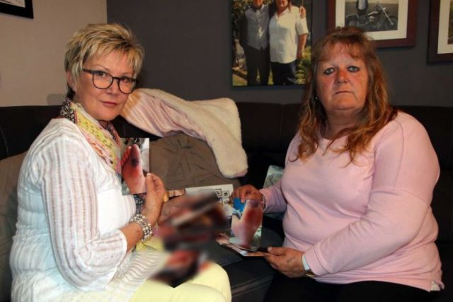 Relatives hold photo of Gail Reynolds' gangrenous foot