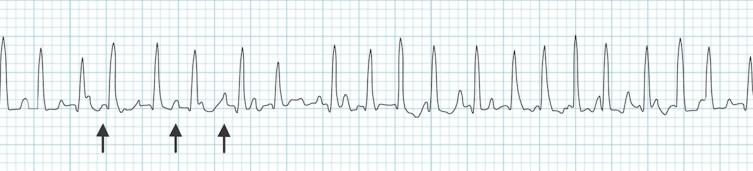 Multifokal atriyal taşikardi: En az üç farklı P dalga morfolojisi ile birlikte hızlı, dar kompleks ritm(oklar). Kaynak : lifeinthefastlane.com - ECG library