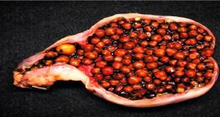 gallbladderstones