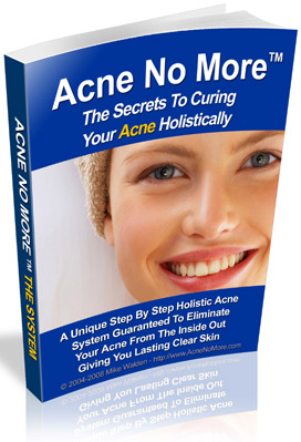 Acne Cure Ebook