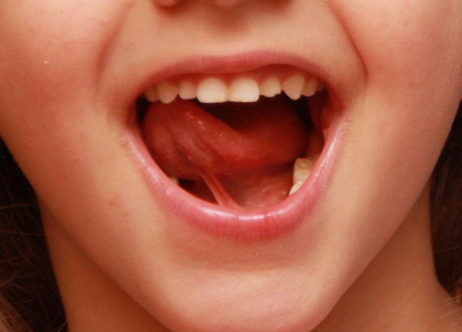 boca bactéria