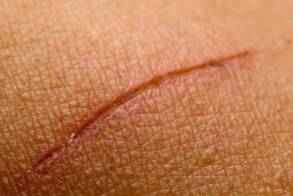 corpo cicatrização lenta