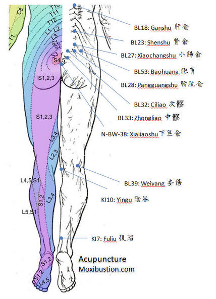 Acupuncture points for urinary incontinence, Overactive Bladder
