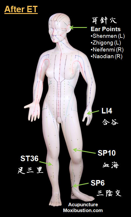 Acupuncture Points used during IVF (in vitro fertilization)