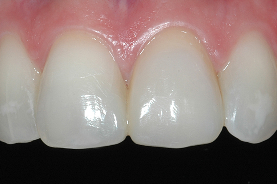 ADA NSW - Anterior and Posterior Restoration Techniques Made Easy
