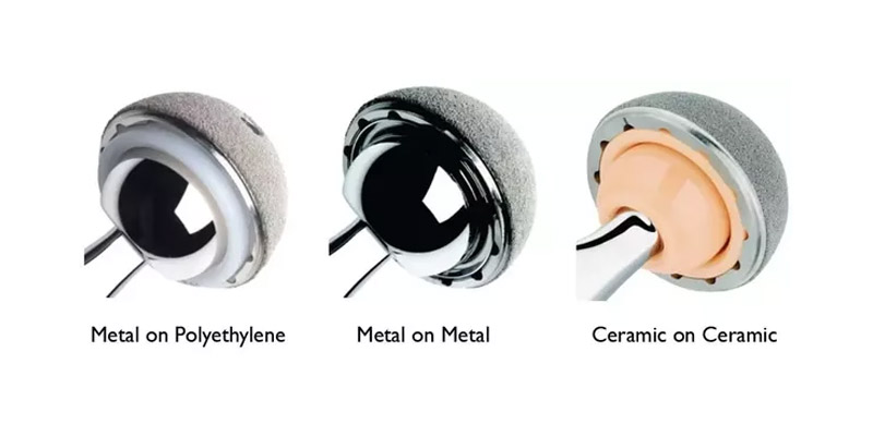 Which Materials Are Used For Hip Replacement Implants? - Aditi
