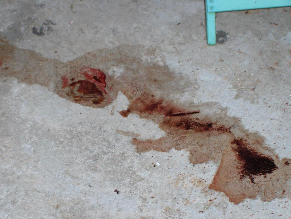 Fremont, California Blood Cleanup – Post Hunting Accident