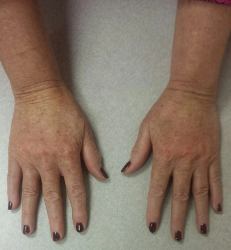 my hands immediately after treatmetn