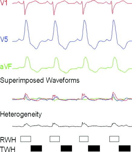 Crescendo in Depolarization and Repolarization Heterogeneity Heralds