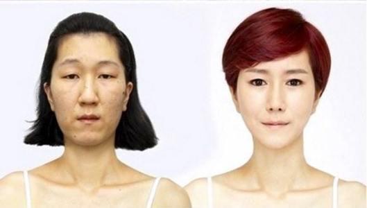 عمليات التجميل