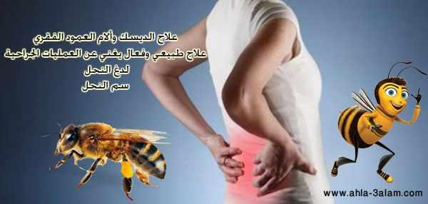 علاج الديسك طبيعي بلدغ النحل تغنيك عن الجراحة