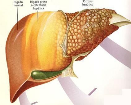 El peligro del Hígado Graso