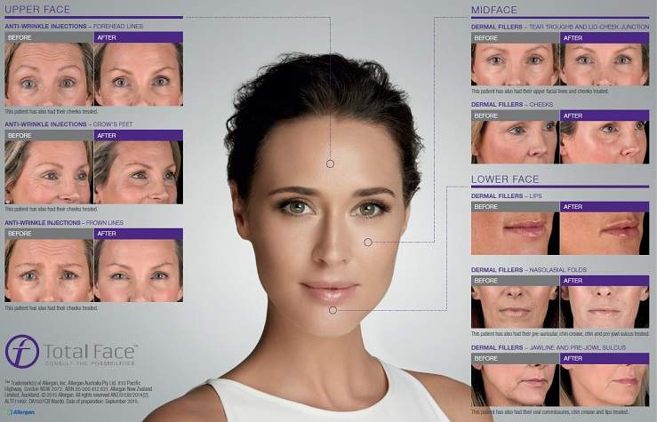 Products - specialty and brand pharmaceutical - Allergan