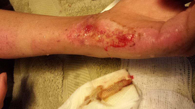 Wound Care Services In Vancouver Bc All Nursing Health Services