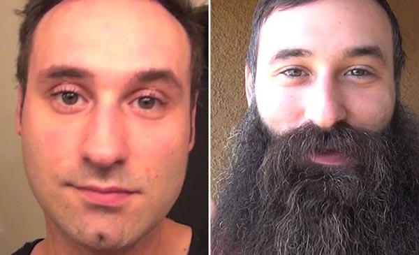 قبل و بعد اللحية