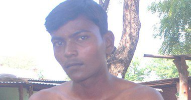 شاب هندي قلبه ينبض خارج جسمه