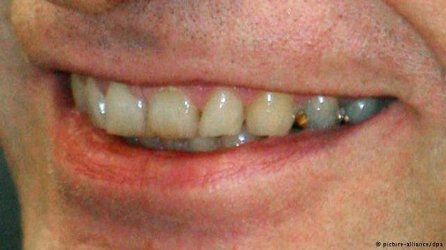 اسنان صفراء