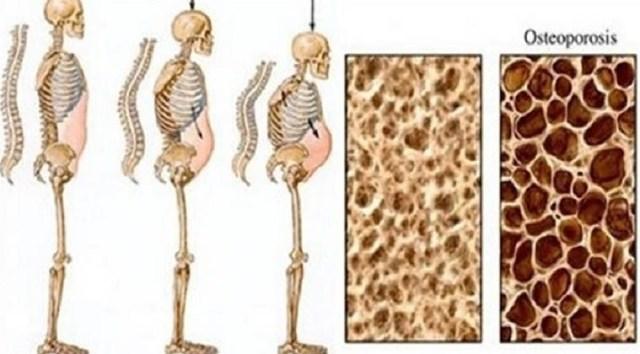 ossos_pessoas_desfazer