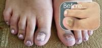 Acrylic Toe Nails  Amanda's Amazing Nails