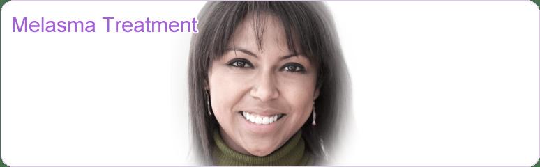 laser melasma treatment