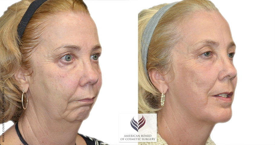 Facelift Procedure Guide American Board of Cosmetic Surgery