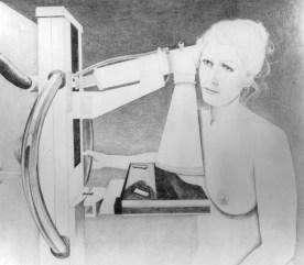 CPT code for digital screening mammogram Guide