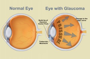 Tips to learn ICD10 code for Glaucoma for Laterality
