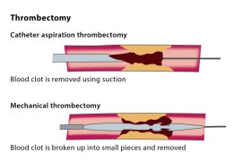 Excellent Tips to Code Mechanical Thrombectomy in Dialysis AV fistula