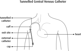 Superb tips for Tunneled Central Venous Catheter CPT codes