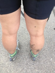 What the back of my legs looked like after 100-plus miles.