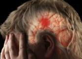 Las hemorragias cerebrales en hombres son más profundas que en las mujeres