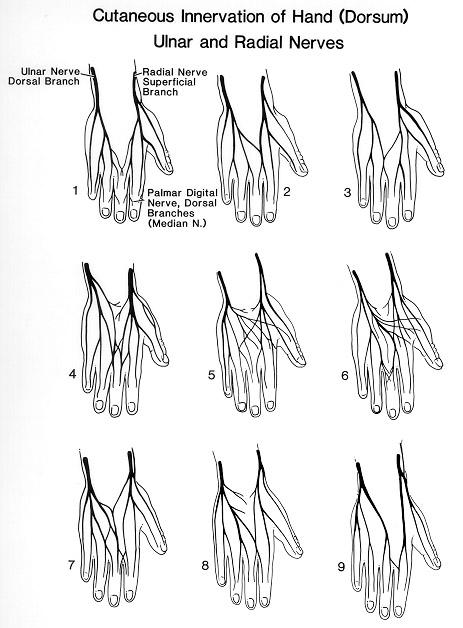 image of Morton Neuroma Intermetatarsal Cpt Code 1