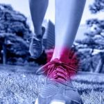 How Ankle Sprains Stick With You For Life