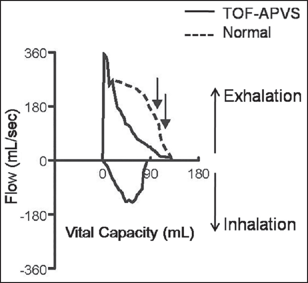 Pulmonary function testing in infants with tetralogy of Fallot and
