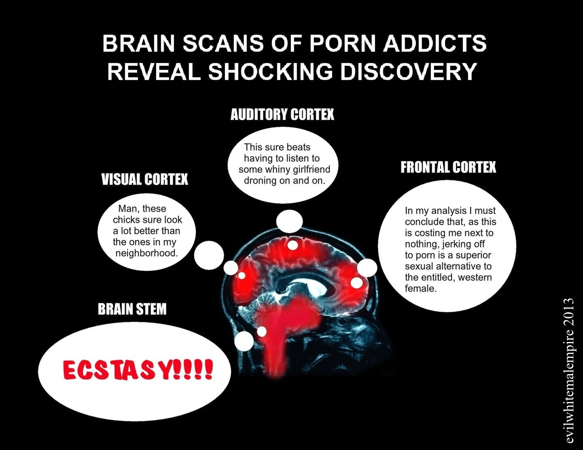 How pornography really affects your brain