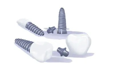 Types of Dental Implants: Houston Specialist