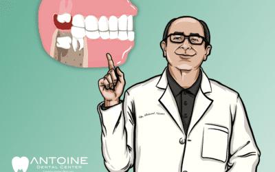 Do I Need My Wisdom Teeth Removed?