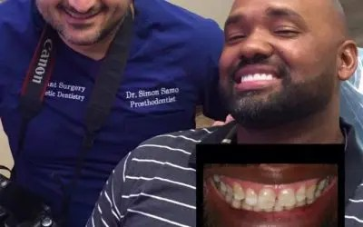 An Extreme Smile Makeover For The New Year | Houston, TX