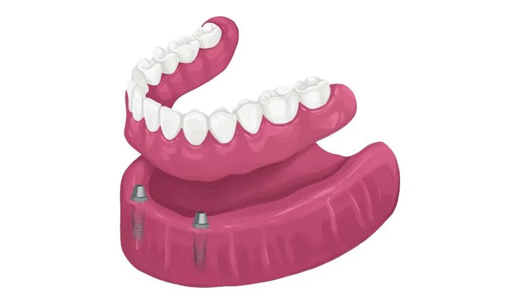 Dentures in Houston