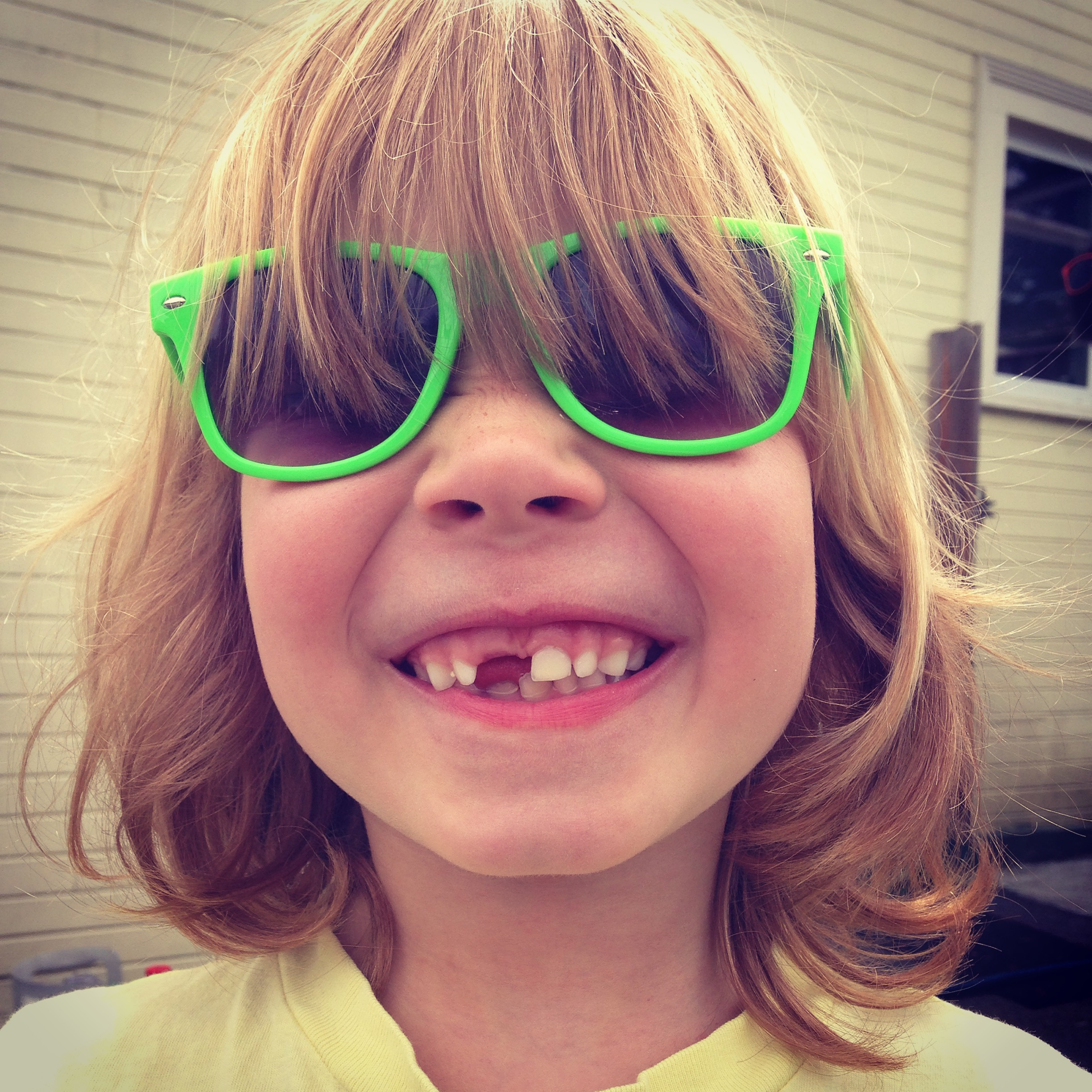 Kale has lost that other front tooth since I took this in May. Big giant gap now.