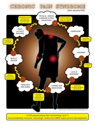 Pain Cycle ~ Client: Dr. John Jerome, Phd ~ Lansing, MI ~ 2014 (Adobe Photoshop/Illustrator)