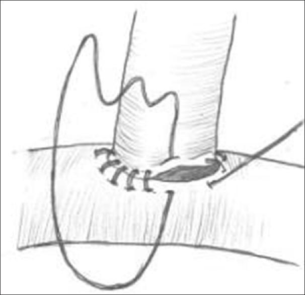Microvascular anastomosis in oral and maxillofacial surgery Girkar F